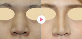鼻ビフォーアフター